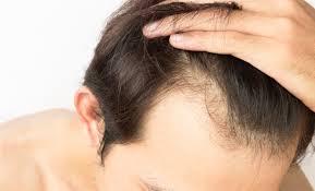 Grow Hair – česká republika – lékárna – tablety