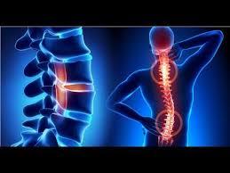 Motion Energy - na bolesti kloubů  – recenze -forum – kapky