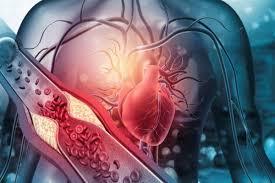 Cardione - recenze - diskuze - forum - výsledky